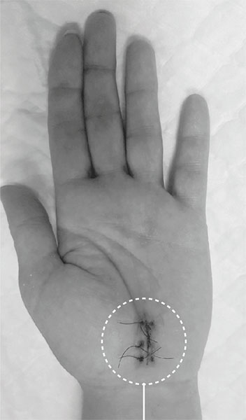 Cirugía túnel carpiano abierta